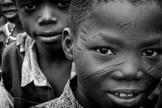 photo google / visage d'enfant Balafré